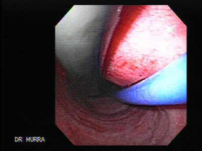 Esophagusl Achalasia: Pneumatic dilatation under endoscopic guidance.