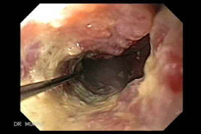 Endoscopy of Achalasia and Esophageal Cancer