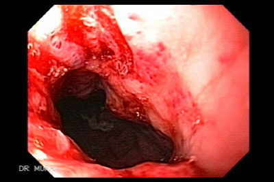 Achalasia and esophageal cancer