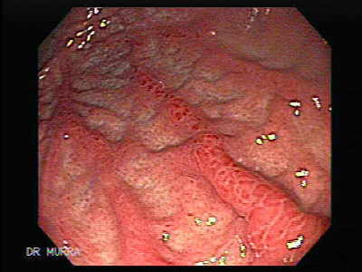 Gastritis Bacterial Infection