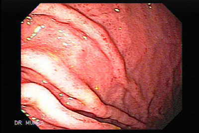 Endoscopy of Acute Gastritis.