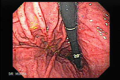 Endoscopy of Acute Gastritis