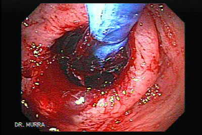 Endoscopy of Pneumatic Dilation for Esophageal Achalasia