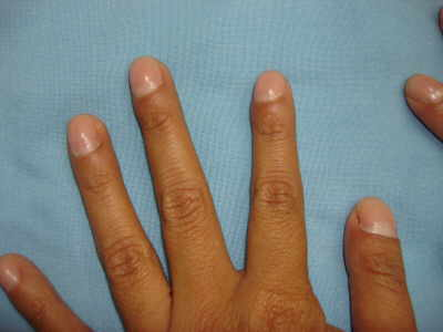 .Achalasia and Clubbing of the Fingers.