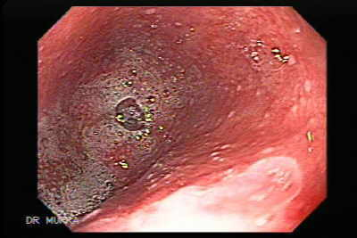 Barrett's esophagus is an acquired condition resulting from severe esophageal mucosal injury. It still remains unclear why some patients with gastroesophageal reflux disease develop Barrett's esophagus whereas others do not. The diagnosis of Barrett's esophagus is established if the squamocolumnar junction is displaced proximal to the gastroesophageal junction and if intestinal metaplasia is detected by biopsy.