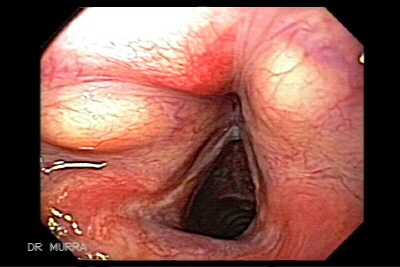 Bilateral lipoma of oropharynx