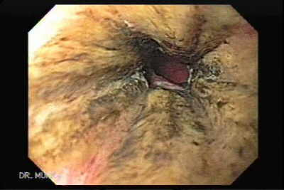 The Black Esophagus: Acute Esophageal Necrosis Syndrome