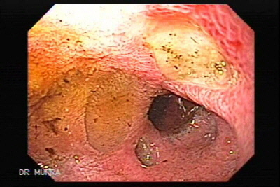 Endoscopy of The Black Esophagus