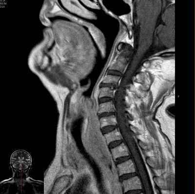 Magnetic Resonance of the Neck Sagital T1 weighted image without contrast