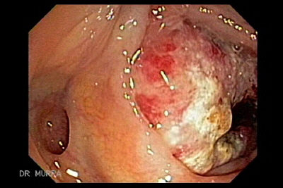 cecum cancer