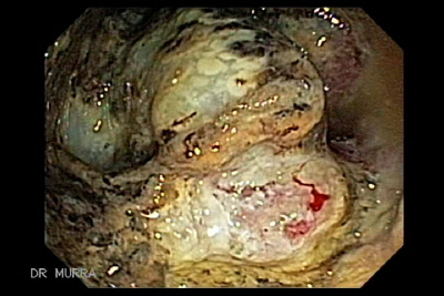 Rectal Cancer melanosis coli
