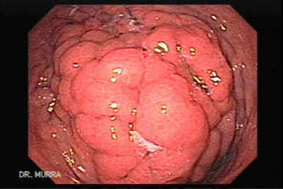 Metastatic colon adenocarcinoma of the stomach
