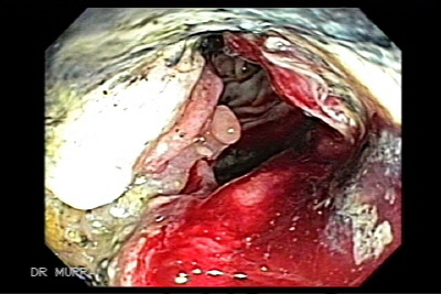 Endoscopic Image of Adenocarcinoma ulcerated of ascending colon