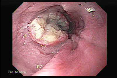 Endoscopic appearance of Esophageal Squamous Cell