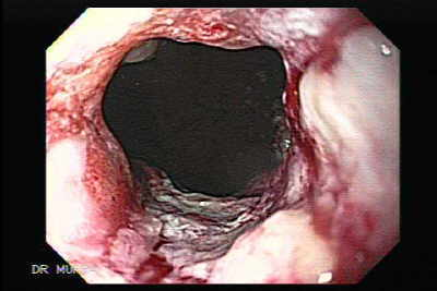 Endoscopic Picture of Esophageal Carcinoma.