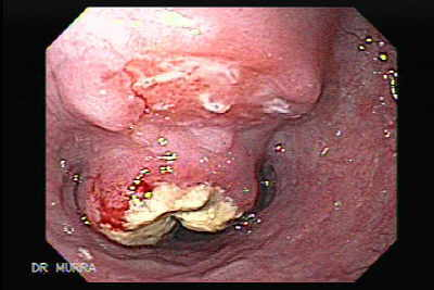 Small cell carcinoma of the lung that invades the upper and the middle third of the Esophagus.