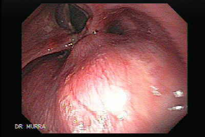 Esophageal Squamous Cell Carcinoma of the the upper third of the Esophagus