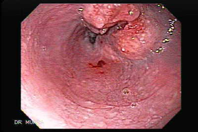 Endocopy of Esophageal Squamous Cell Carcinoma