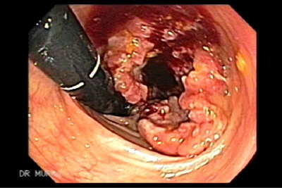 Endoscopic Image of Adenocarcinoma of the Rectum