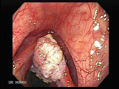 Squamous cell carcinoma of the larynx.
