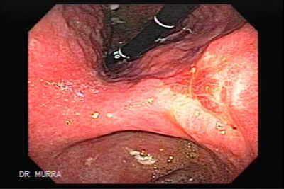 Small Gastric Adenocarcinoma of the Diffuse Ring Cell