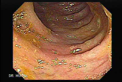 Colonoscopia de Colitis Pseudomembranosa