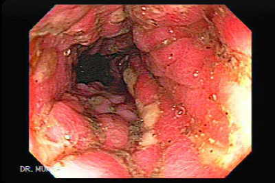 Colon tuberculosis