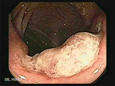 Colonic Tuberculosis