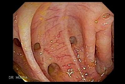 enfermedad gastro intestinal: