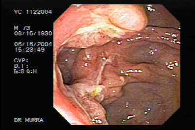 Video Colonoscopy of Crohn´s Disease.