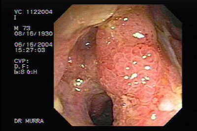Crohn´s Disease of the ileocecal valve and terminal Ileum