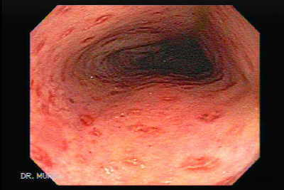 Colonoscopy of Crohn´s Colitis