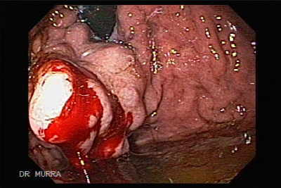 Gastric Varix Endoscopic Ablation with Cyanoacrylate Glue