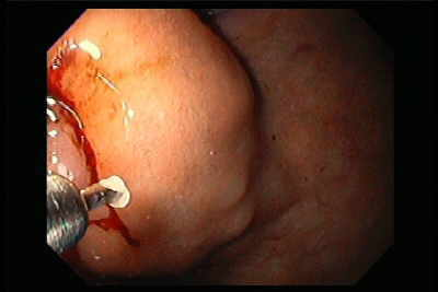 Endoscopy of Gastric Varices histoacryl