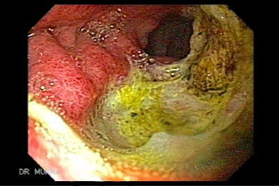 Endoscopy of Giant Ulcer of the Duodenum