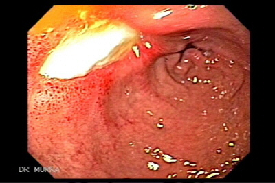 Multiple diverticula of the duodenum