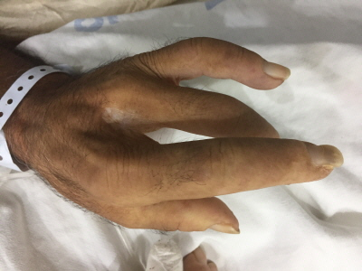 Esclerodermia Sclerodactyly in Systemic Scleroderma