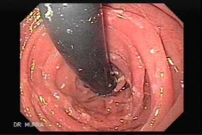 Retroflexed image, seen the endoscope emerging from the esophagus.