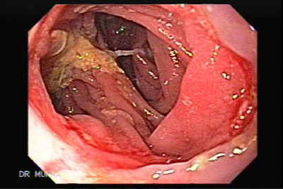 Esophageal stenosis that required balloon dilatation.
