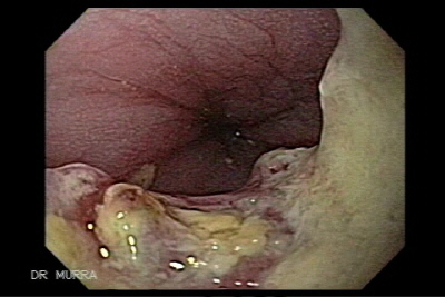 Esophagus cancer