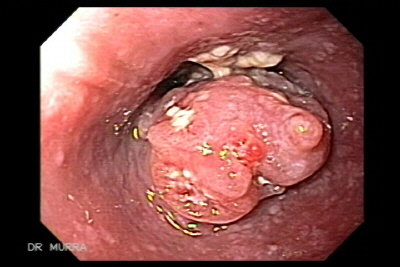 Esophageal Squamous Cell Carcinoma of the middle third.
