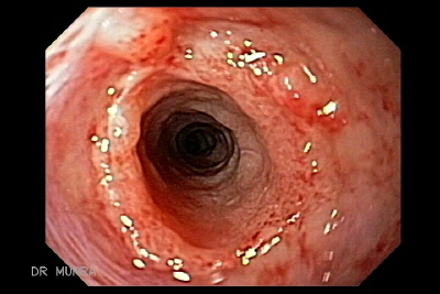 Caustic Esophageal Stenosis.