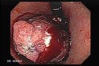 Endoscopic view of Gastric Cánce