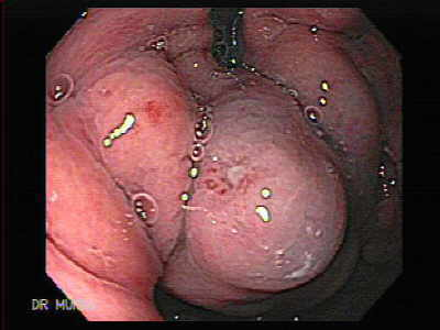 Large Gastric Varices.