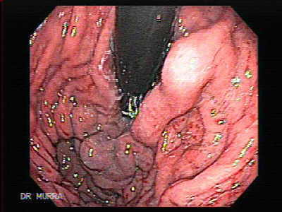 Ulcerated Gastric Varix.