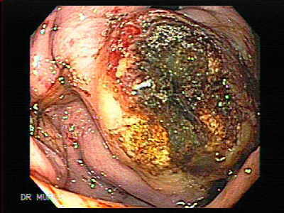 Endoscopy of Gastrointestinal Bleeding from Gastric Varices
