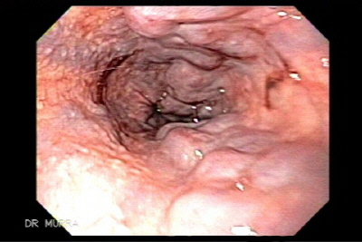 gastric varices