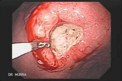 Gastric Ulcer