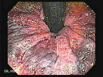 image and video clip of internal hemorrhoids.