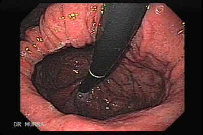 Esophageal Varices and Hiatus Hernia